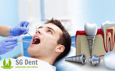 Aplikace špičkových ZUBNÍCH IMPLANTÁTŮ prováděná odborným stomatochirurgem MUDr. I. Sghierem! Kvalitní služby, profesionální přístup a příjemné prostředí! To vše Vám nabízí Zubní klinika SG Dent na Praze 9 za 14800 Kč!