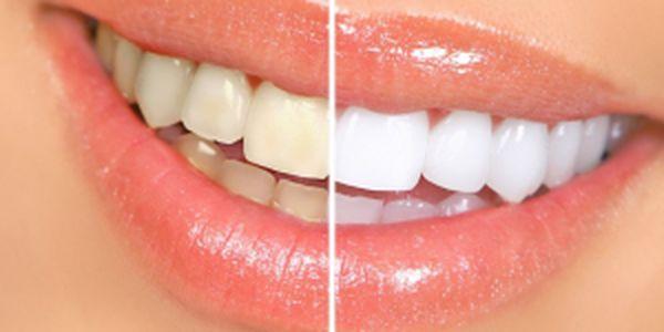 Pouze 389 Kč za krásný bílý úsměv! Originální tužk...