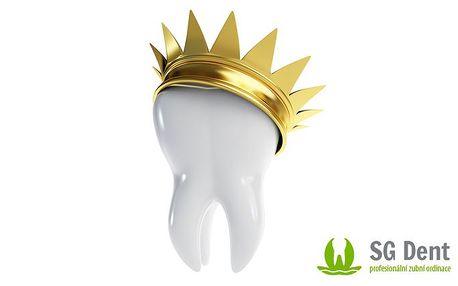 Metalokeramická korunka a kompletní péče o zuby na klinice SG Dent