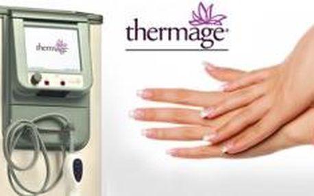Prémiové omlazení rukou Thermage CPT se slevou 83%...