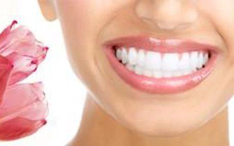 2x profesionální bělení zubů za neskutečnou letní ...