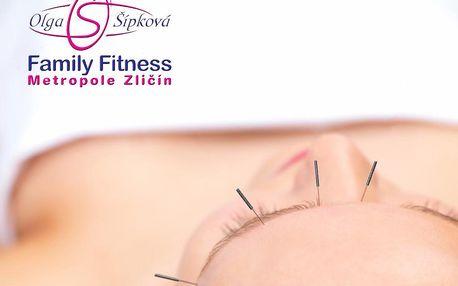 Kosmetická akupunktura v boji proti vráskám - Darujte mládí!
