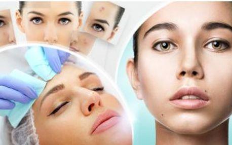 Hloubkové anti akné ošetření pleti v délce až 75min. s aktivním peelingem, hloubkovým čištění, sérem a maskou.