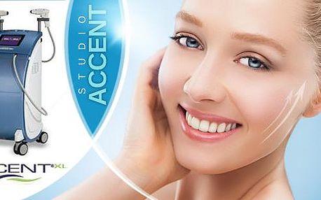 Facelifting + maska s kyselinou hyaluronovou! 1 nebo 5 ošetření pro odstranění vrásek, podbradku a strií!