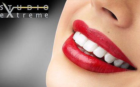 Bělení zubů laserem bez použití peroxidu