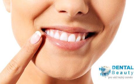 30 minut dentální hygieny v zubní ordinaci Dental Beauty v Praze