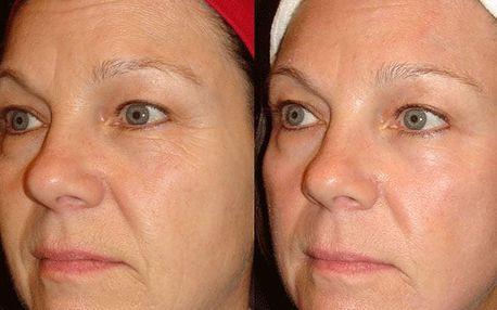 Omlazení pokožky - 3D Hifu lifting Ultherapy v Pardubicích