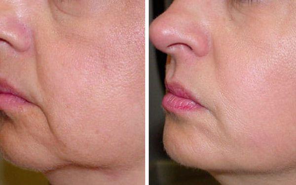 Lifting - vypnutí kůže (1× 20-30 min.), na výběr: oči, čelo, tvář/spodní část obličeje, krk/dekolt, krk2