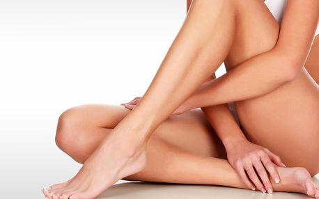 5x trvalá epilace lýtek nebo intimních partií