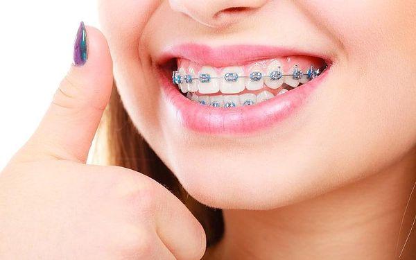 Zoubky jako perličky: odstranění zubního plaku, kamene i pigmentací3