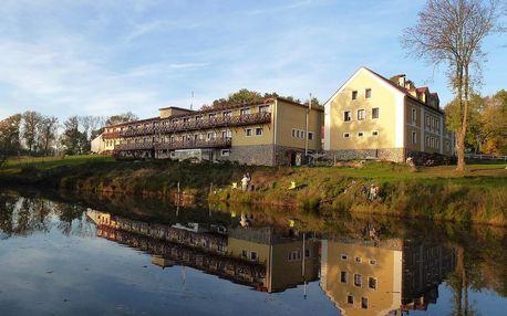 Západočeské lázně: Hotel Resort Stein