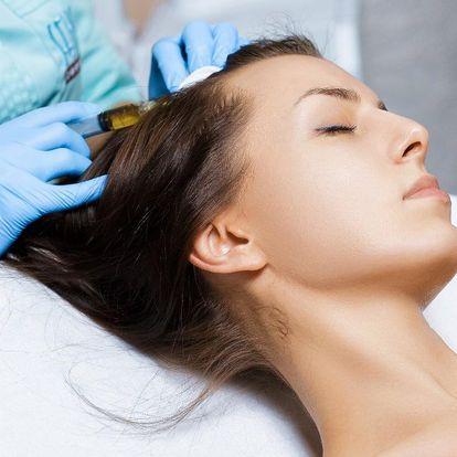 Mezoterapie proti řídnutí vlasů: 1, 3 i 5 ošetření