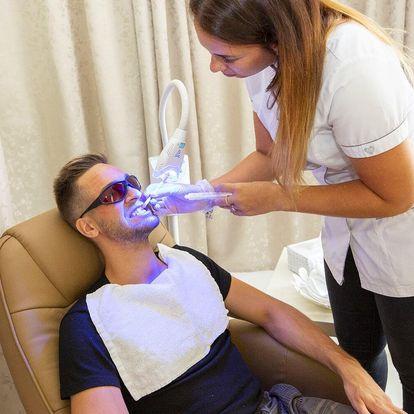 Šetrné bělení zubů aktivním uhlím – bez peroxidu