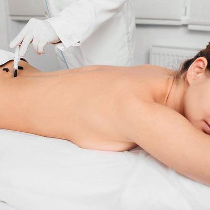 Účinná terapie pomocí pijavky lékařské