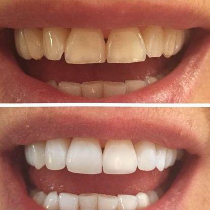 Neperoxidové bělení zubů přístrojem WHITEN LED vč. remineralizace