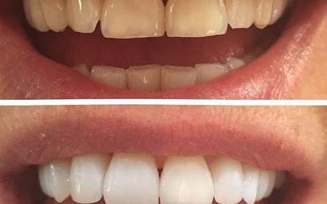 Neperoxidové bělení zubů odborným přístrojem s remineralizací skloviny