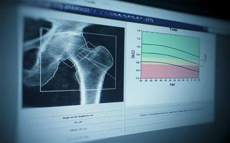 Diagnóza osteoporózy s konzultací na 60 minut