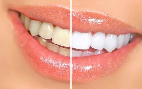 Bezperoxidové bělení zubů s aktivním uhlím pro bělejší chrup