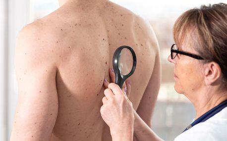 Bezbolestné odstranění kožních výrůstků díky technologii Cryopen