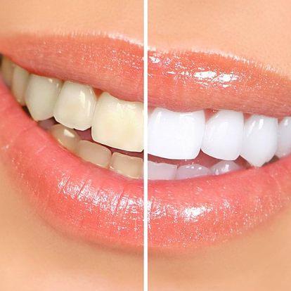 Bezperoxidové bělení zubů v Plzni pro krásný bílý chrup