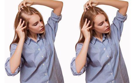 Mezoterapie - 3× nebo 6× ošetření, účinné řešení pro řídnoucí a slabé vlasy na 90 minut
