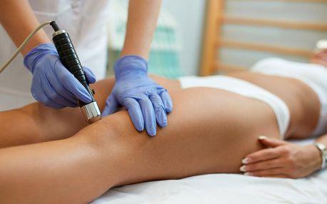 Terapie rázovou vlnou proti bolestem a celulitidě