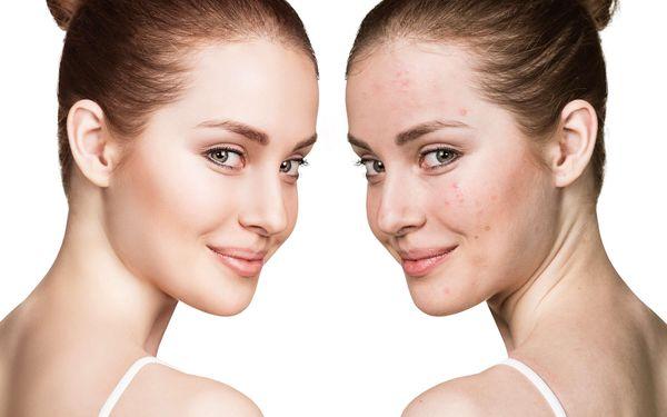 Kosmetické ošetření laserem pro pleť bez vrásek, pigmentových skvrn a akné