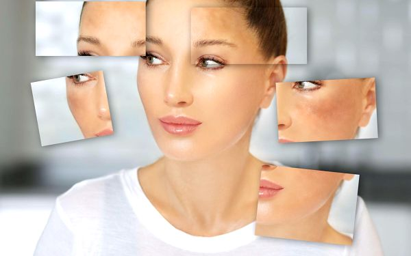 Ošetření pokožky laserem3