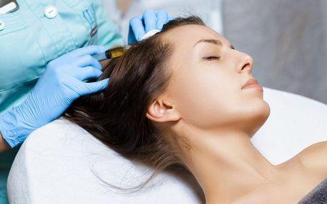 Mezoterapie proti řídnutí vlasů: 1 až 6 ošetření