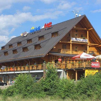Beskydy: Hotel Grůň
