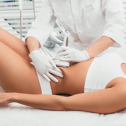 Neinvazivní liposukce v salonu Diamond Spa