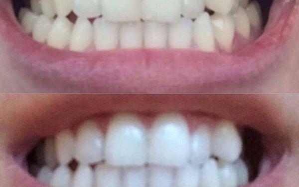 Ordinační bělení zubů2