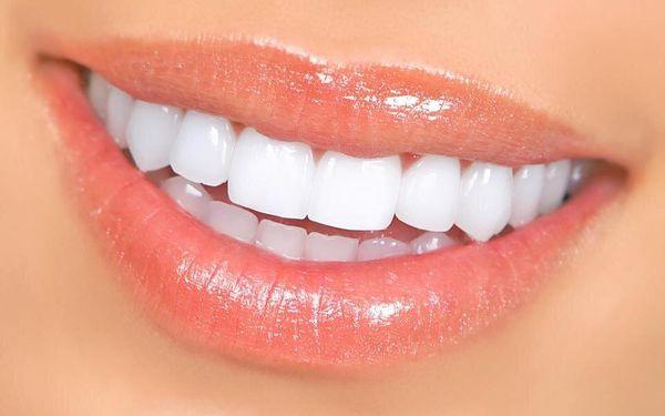 Ordinační bělení zubů4