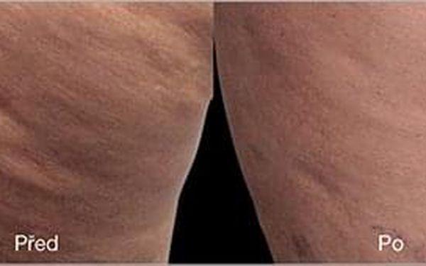 3× ošetření oblasti břicha2
