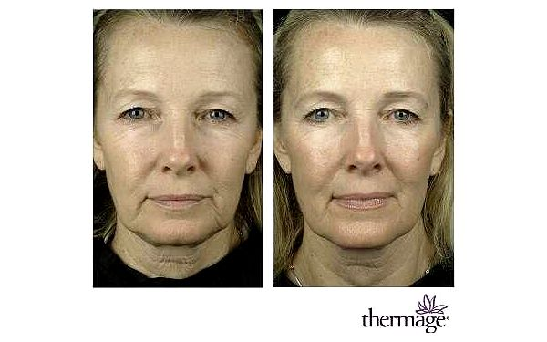 Thermage CPT - lifting - 30 minut vybrané partie5