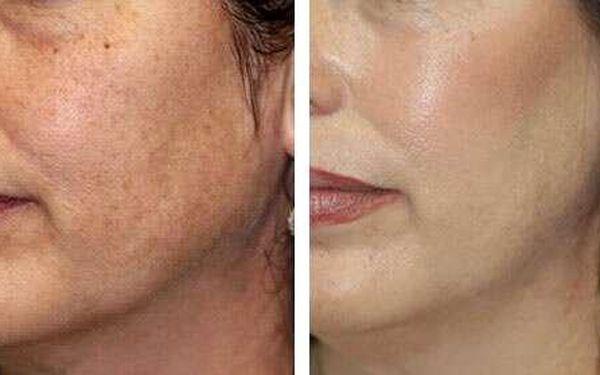89% sleva na IPL odstranění akné, žilek či pigmentových skvrn (30 minut)3