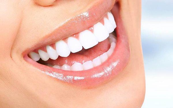 Zoubky jako perličky: odstranění zubního plaku, kamene i pigmentací2
