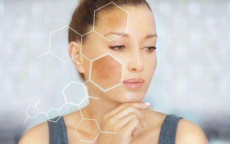 Kosmetické ošetření mikrojehličkování nebo TR terapie pro úlevu od bolesti