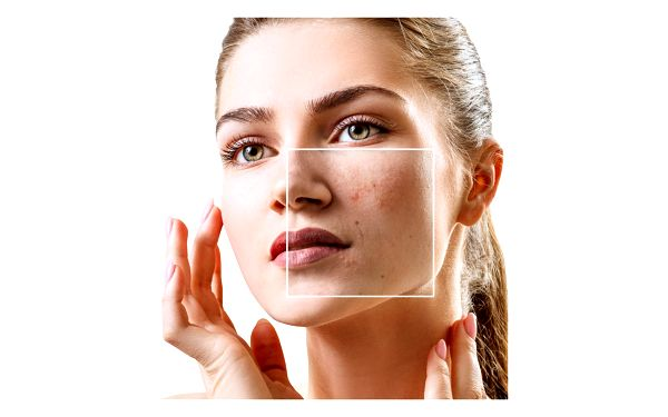 Odstranění žilek, pigmentace či akné v salonu Towell