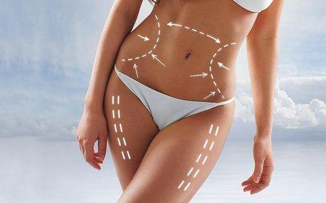Procedury pro fit tělo: bodystyling či lymfodrenáž