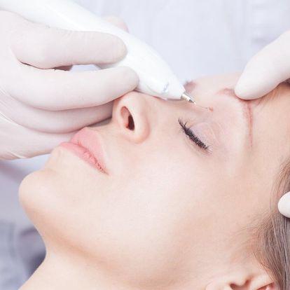 Odstranění výrůstků: hemangiomů, fibrom či milií