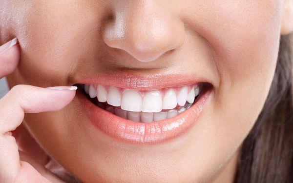 Dentální hygiena s airflow a lokální fluoridací