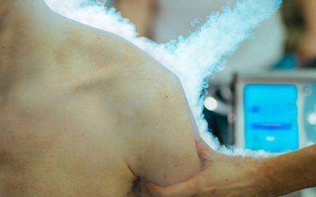 Lokální kryoterapie: využijte léčivou sílu chladu