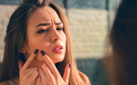 Odstranění akné na obličeji, ramenou i dekoltu