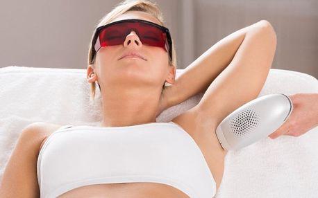 Zbavte se chloupků laserovou epilací pro ženy