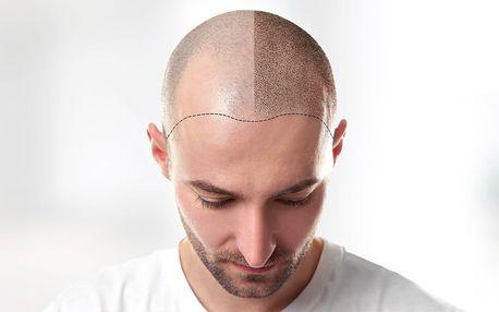 Zamaskujte pleš: tetování vlasů mikropigmentací