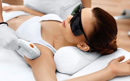 Epilace IPL laserem: 5 ošetření oblastí obličeje i těla