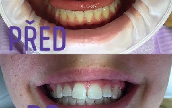 Dentální hygiena pro děti od 11 do 15 let3
