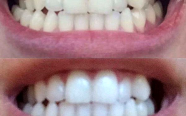 Ordinační bělení zubů5