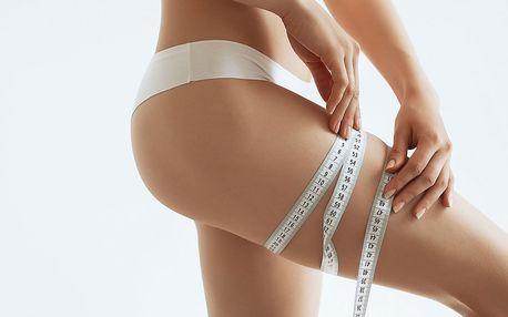 Neinvazivní liposukce: ošetření kavitací